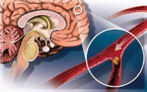 หลอดเลือดสมองตีบ