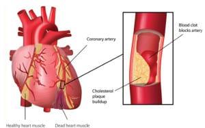 หลอดเลือดหัวใจตีบตัน