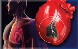 หลอดเลือดหัวใจ-หัวใจวาย