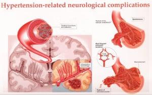 หลอดเลือดในสมองตีบ