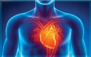 หัวใจ-เส้นเลือดตีบ