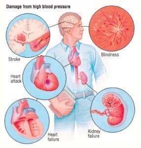 อาการโรคความดันโลหิตสูง