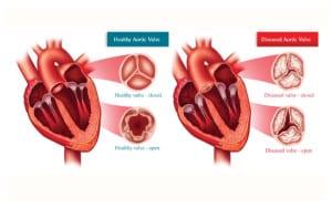 เส้นเลือดหัวใจตีบตัน
