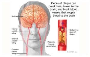 เส้นเลือดในสมองตีบตัน