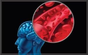เส้นเลือดในสมองตีบ