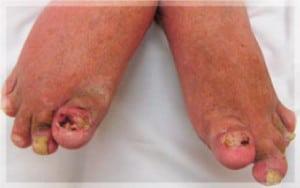 โรคสะเก็ดเงินเล็บเท้า