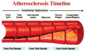 ไขมันคอเลสเตอรอลในหลอดเลือด