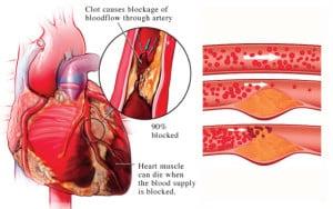 ไขมันในหลอดเลือดหัวใจ