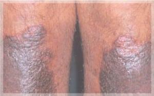 1ผื่นสะเก็ดเงิน-Plaque-Psoriasis-ขา