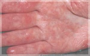 5ผื่นสะเก็ดเงิน-Erythrodermic-Psoriasis-มือ